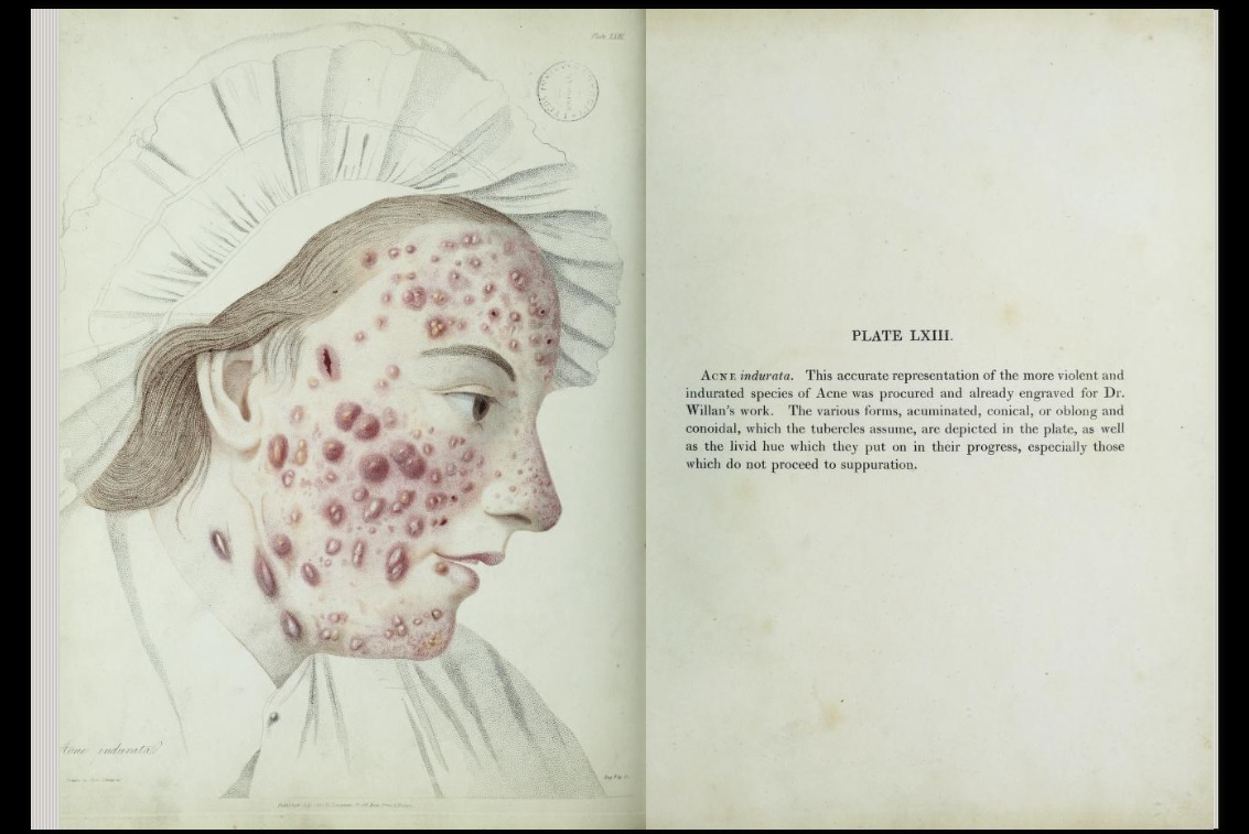 Colour illustration of acne on a woman's face and text description of condition.