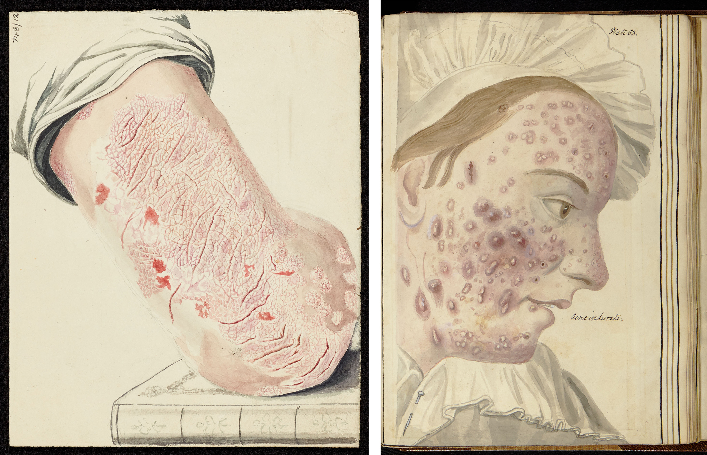 Colour drawing of psoriasis on the back of the upper arm. Colour watercolour drawing of severe acne on a woman's face. The woman is wearing a white bonnet.