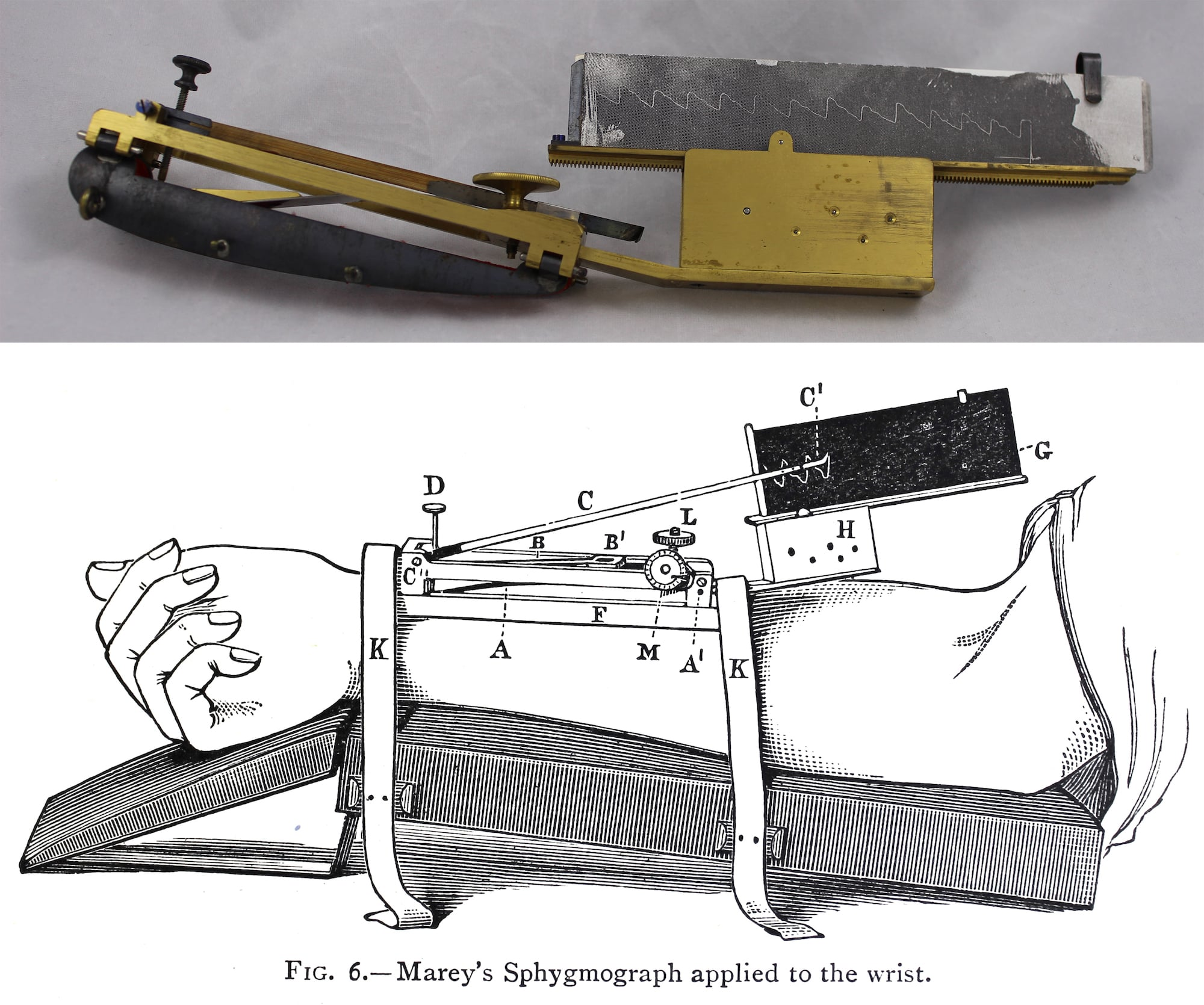 Photograph of a sphygmograph above and an illustration of it attached to a wrist below.