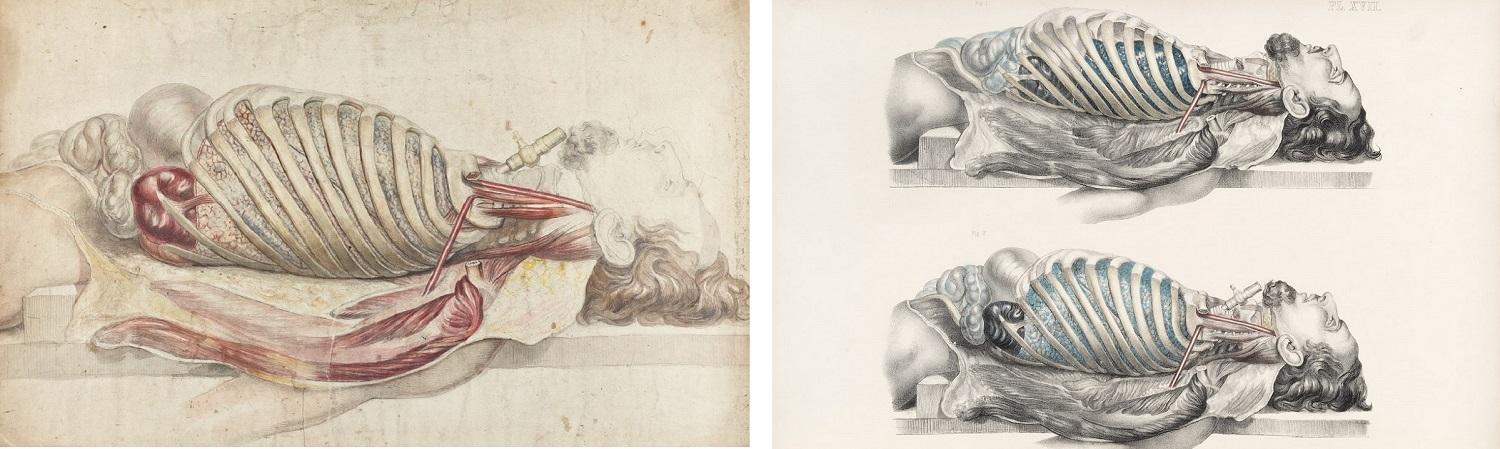 Colour illustration of a dissected male torso and head laying on his back and two colour illustrations of a dissected male torsos and head laying on his back.
