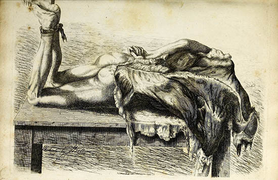 Engraved illustration of the muscles of the back. The dissected white body is lying on a table, with the flesh of the back falling towards the floor. The feet are bound together with rope and raised so that the lower legs are at 90 degrees to the table.