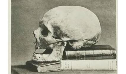 Historical photograph of a skull propped on some books