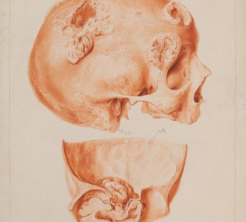 Clifts original drawing of a skull for Ballies Morbid Anatomy